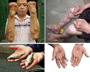 bệnh-do-nhiễm-độc-chì